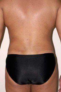 male liposuction case study