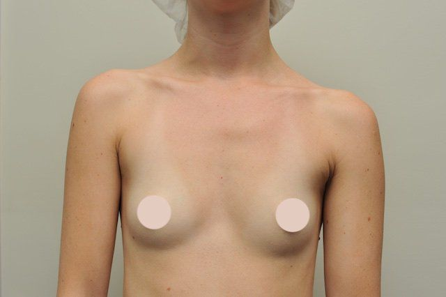 breast implant case study