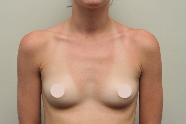 teardrop implant case study