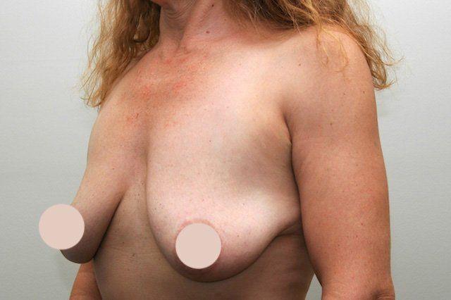 breast lift case study