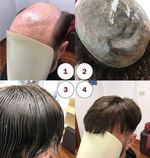 Installazione capelli a contatto