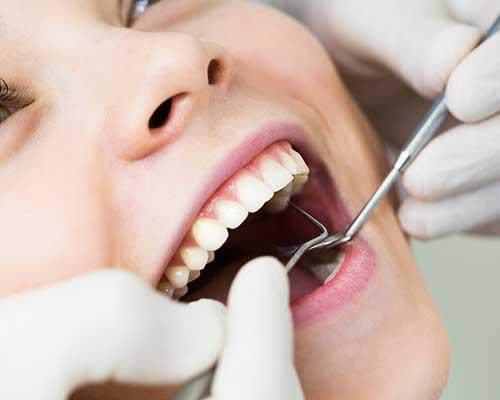 donne con la bocca aperta durante orale checkup
