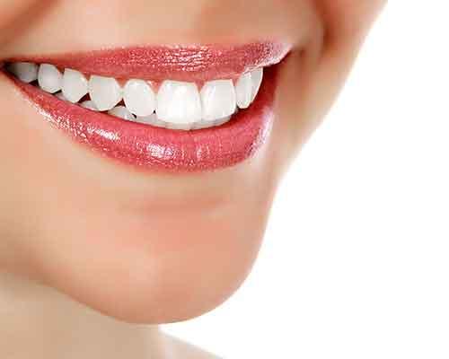 sorriso di una donna coi denti bianchi