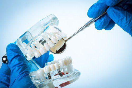 modellino tridimensionale di una dentatura con impianti