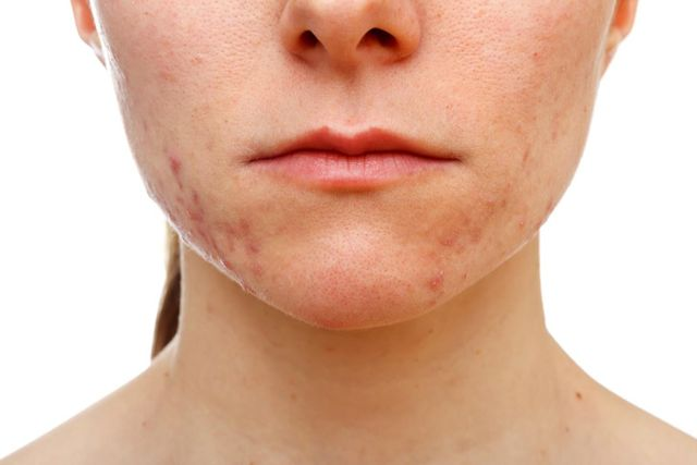 What You Can Do Daily to Help Avoid Adult Acne