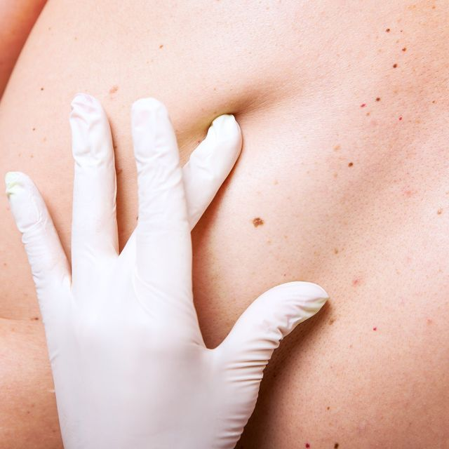 Skin Cancer Treatments In Omaha, NE
