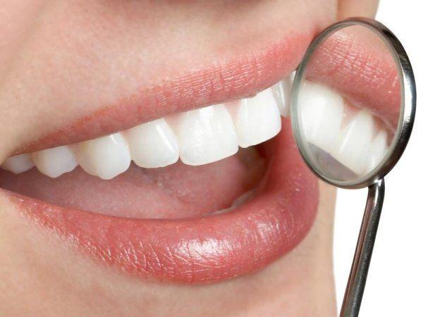 bocca con specchietto dentista
