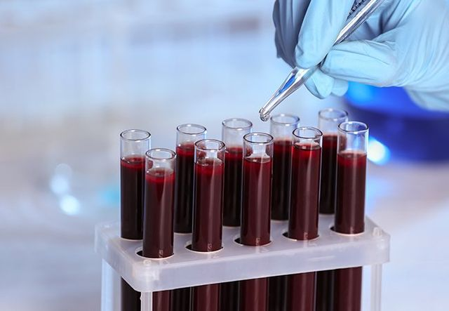 provette di sangue