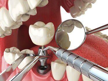 Dentures — Dental Implantation Concept in Owensboro, KY