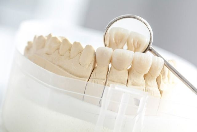 Dental Bridge — Ceramic Bridge on Plaster Model in Owensboro, KY