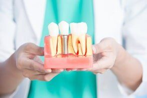 Dental Implants — Dentist Holding a Dental Implant Concept in Owensboro, KY