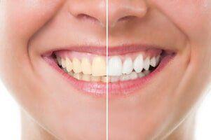 Whitening — Before and After Whitening in Owensboro, KY