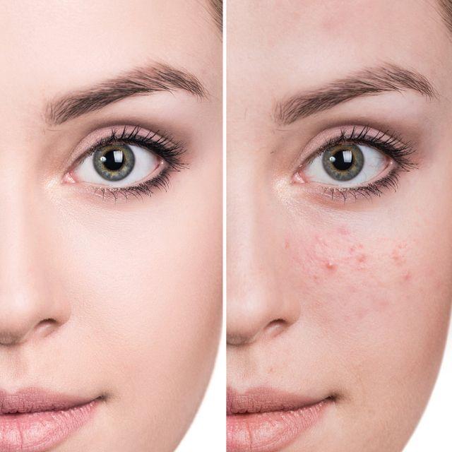 Viso prima e dopo un trattamento