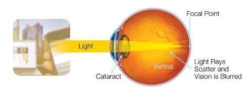 Cataract Surgery Ocala, FL | Dr. Seaborn Hunt