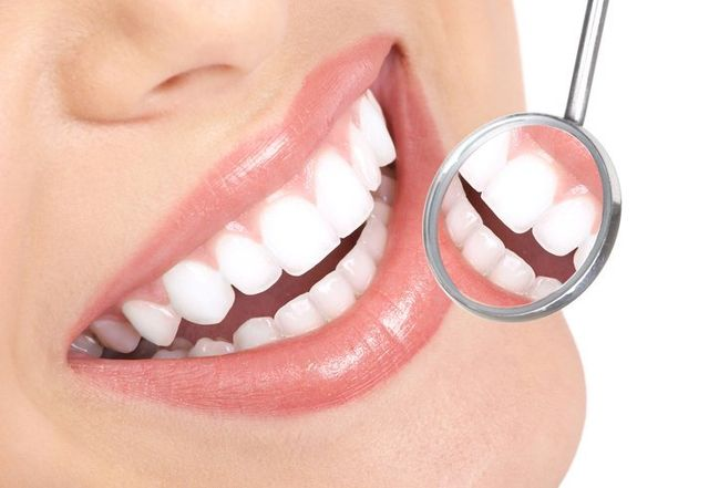 Teeth Whitening Services San Antonio, TX - Live Oak Family Dentistry