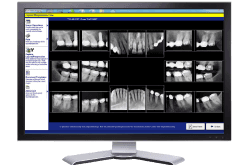 Digital X-rays - Metairie Dental Centre