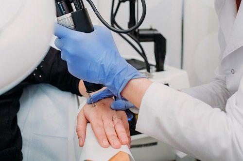 Dermatologo opera trattamento sulla mano di una paziente