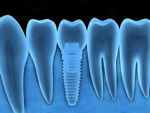 Можно делать мрт с зубными имплантами