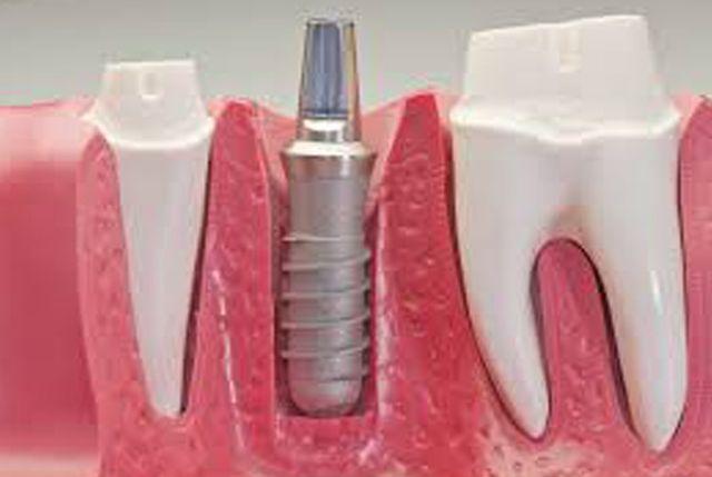 Immediate Implants