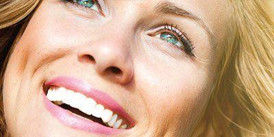 donna con denti sbiancati
