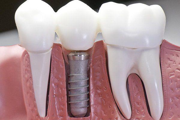 Modellino in plastica che mostra due denti normali e uno con vite al posto della radice