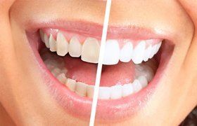 Teeth whitening sessions