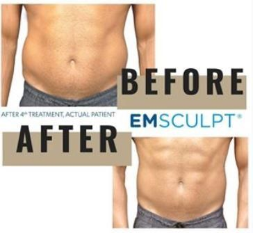 Emsulpt Procedure | Columbus, OH | Dr  Mantor's Wrinkle and Weight