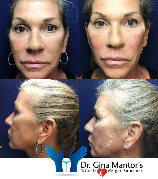 PDO Thread Lift Procedure | Columbus, OH | Dr  Mantor's