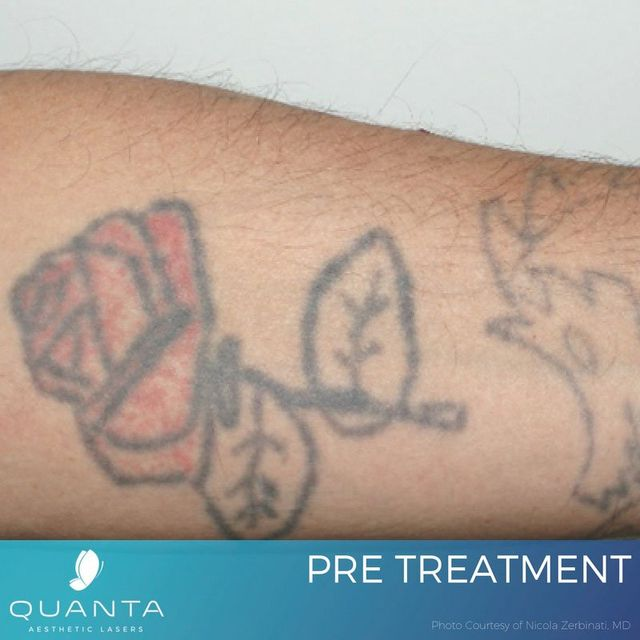 Tattoo Removal Costs Maryland - Learn how much tattoo removal ...