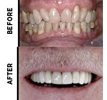 StarBrite Dental Patient Before and After Photos - GP