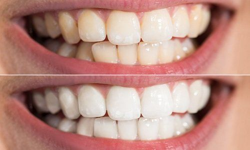 il prima e il dopo uno sbiancamento di denti
