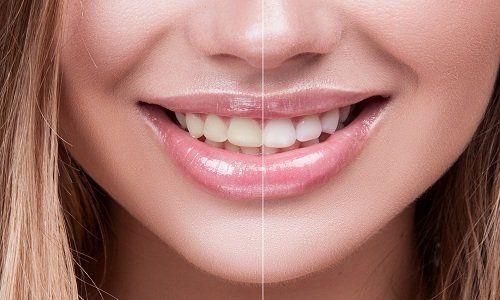 un sorriso di una ragazza con metà denti sbiancati