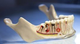 protesi mobili, protesi fisse, ortodonzia