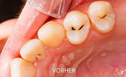 Verfärbt zahn grau Schwarzer Zahn