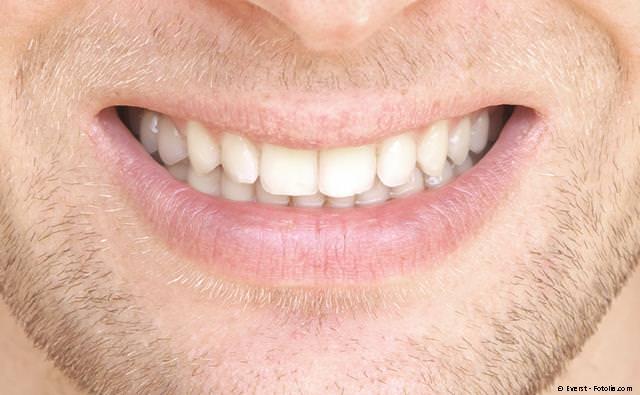 Derselbe Zahn wie oben mit einer unsichtbaren Komposit-Füllung