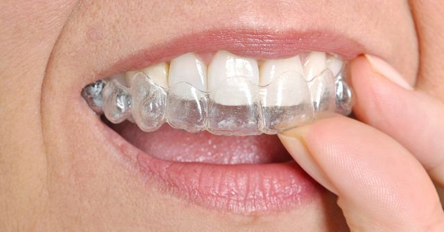 What Are Permanent Dentures?