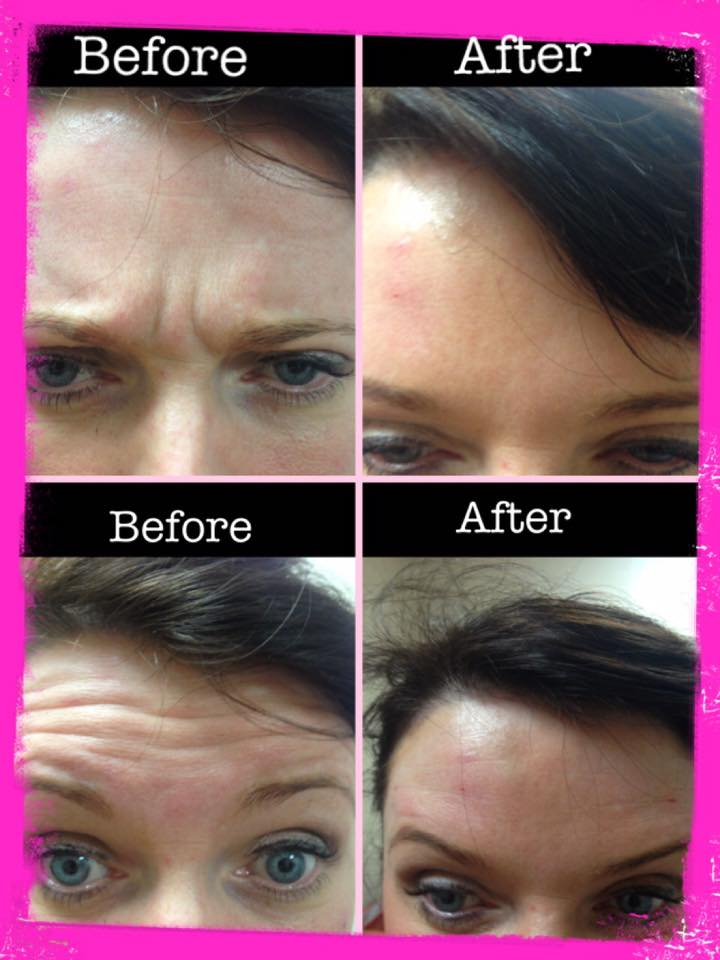 Non-surgical thread lifts on Lisburn Road in Belfast UK