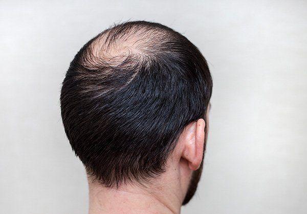 Uomo che soffre di alopecia