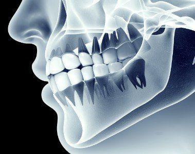 Radiografia 3D di una bocca