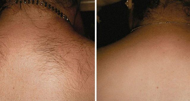 hair removal client's back