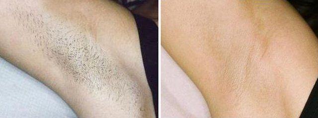 lady's armpit