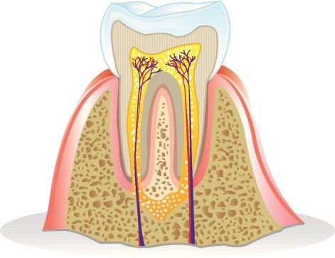 Root Canals in Greensboro NC