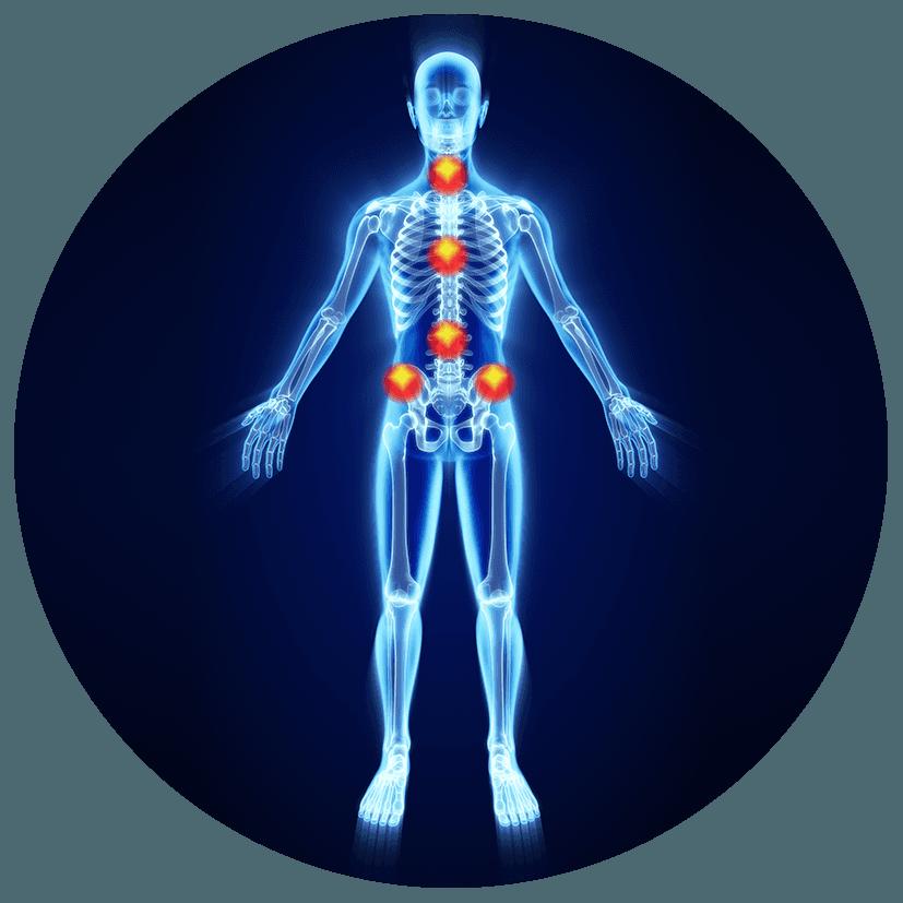 Antidecubito e unità posturali