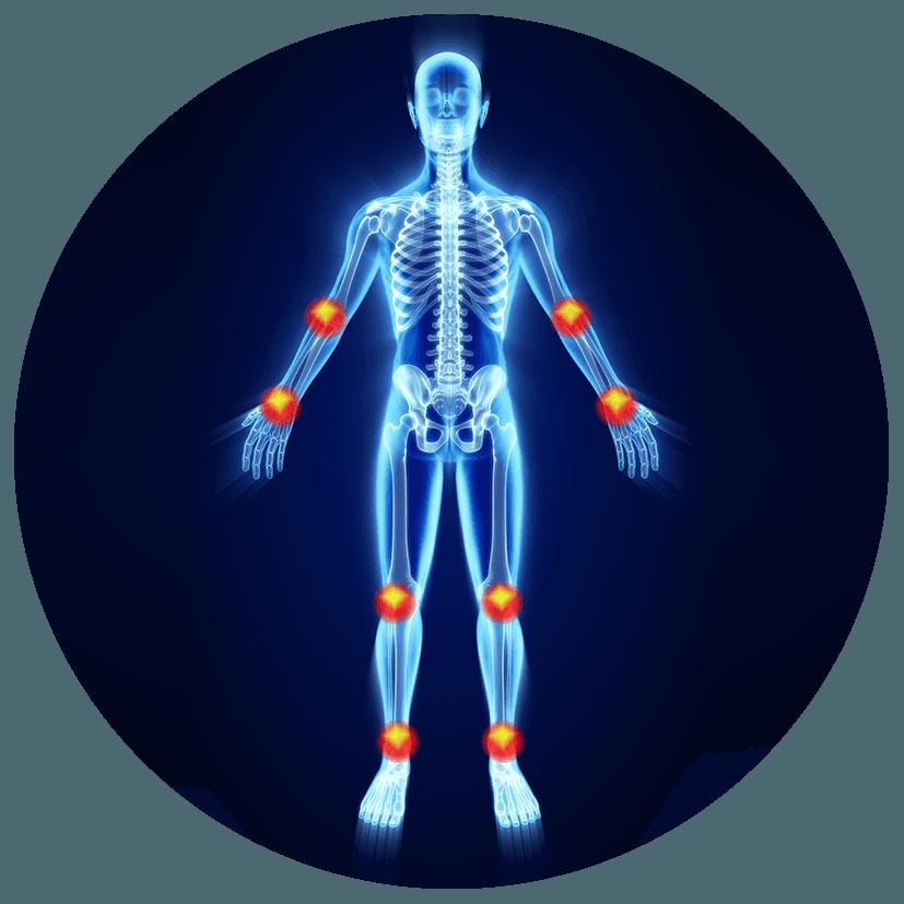 Protesi per amputazioni