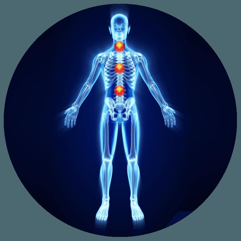 Problematiche alla schiena