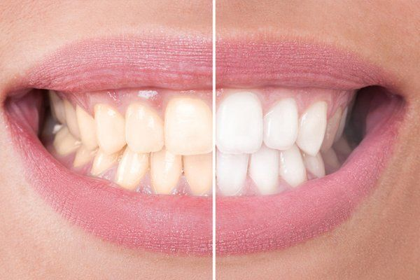 Cosmetic dentistry in Montrose