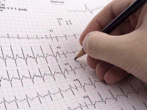 Primo piano di una mano che scrive i risultati dell'elettrocardiogramma