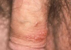 tumore prostata hpv pictures
