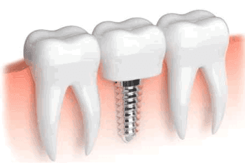 Restorative Dentist - Thomas L Phillips DDS