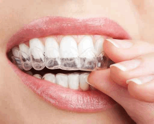 Invisalign Clear Braces from Dr. Thomas L Phillips DDS